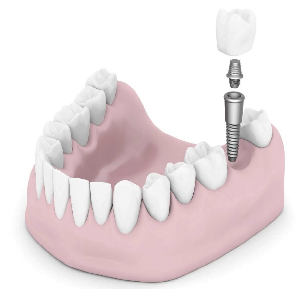 web mjesta za upoznavanje implantata